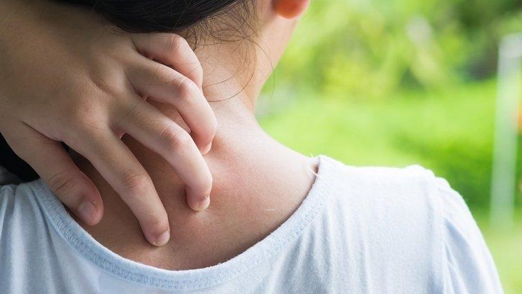 皮膚曬傷癢又痛,絲瓜、小黃瓜、蘆薈是止癢大神?