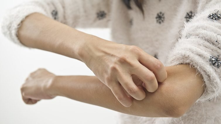 秋冬過敏發癢,類固醇治療沒那麼可怕
