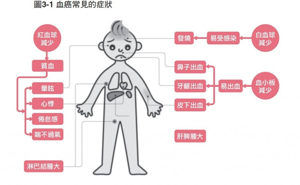 急性 骨髄 性 白血病 原因