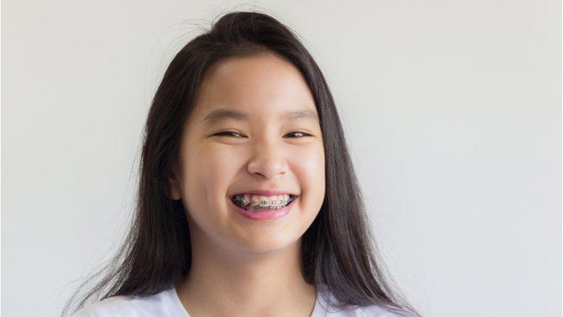 牙齒矯正幾歲做最好?矯正器如何選擇?專業醫師編撰手冊供下載