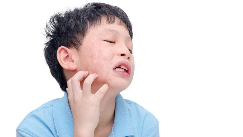 打過水痘疫苗,可確保終身不會感染水痘嗎?