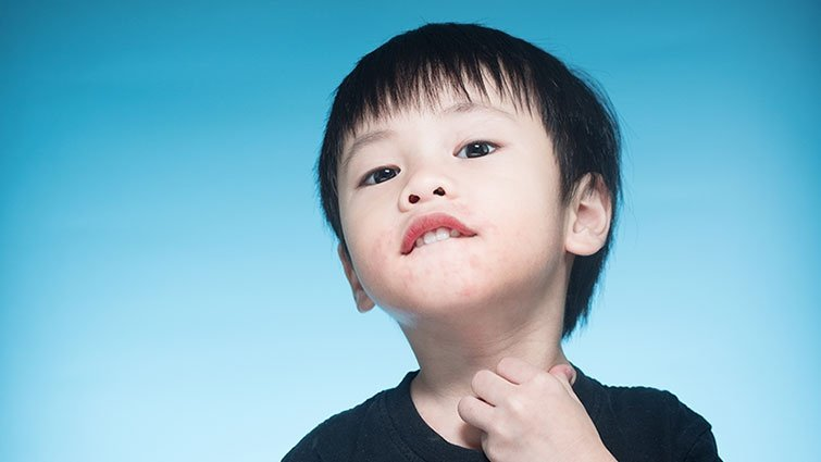 小孩得水痘要讓手足也感染?10個常見水痘問題
